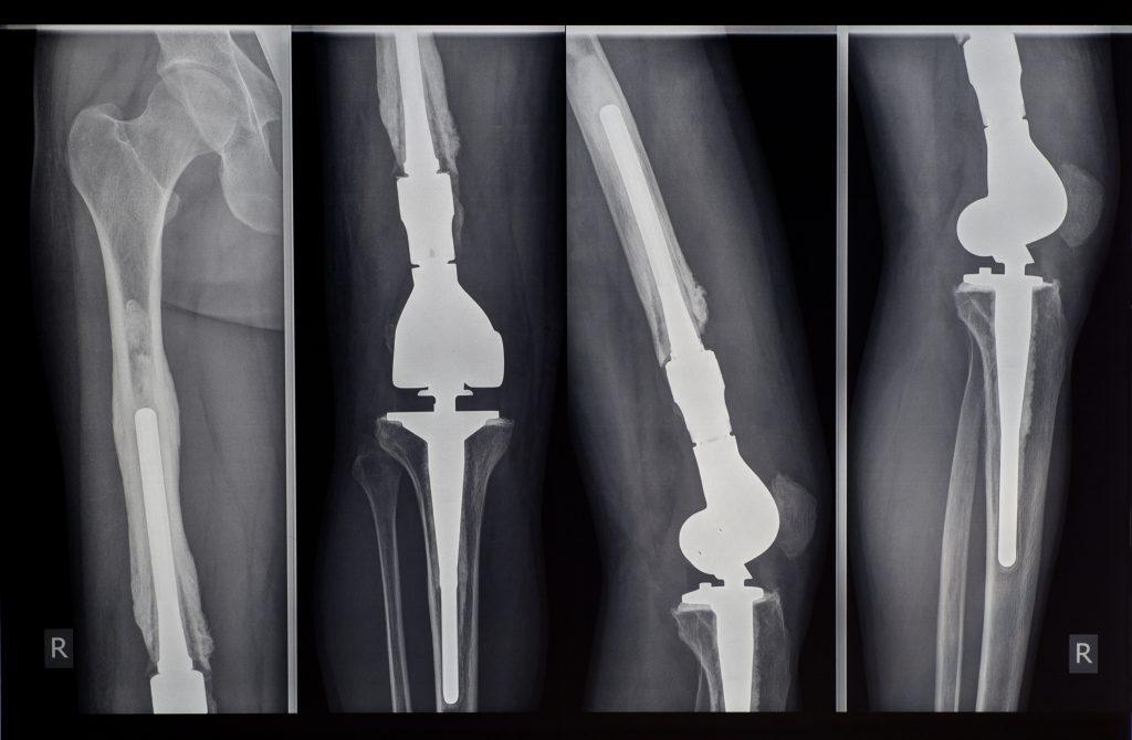 radiogfrafia protesis de rodilla